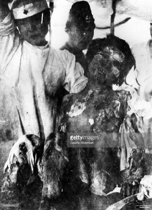 14-year-old-girl horribly burned by Nagasaki bomb 11aug45_Ohmura Navy Hospital, Nagasaki_Getty Images_568884547