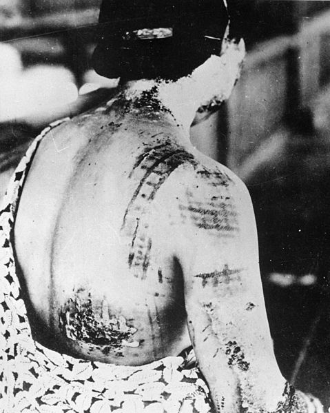 The patient's skin is burned in a pattern corresponding to the dark portions of a kimono. Credit: National Archives and Records Administration 519686