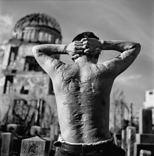 Hiroshima victim photographed 1951