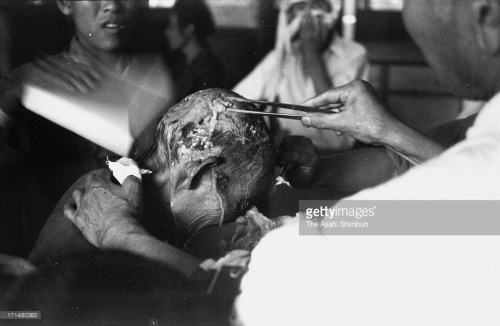 Man receives treatment at Kozen Elementary School in Nagasaki_Getty Images_171480363